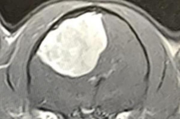 MRI meningitis tumor cat